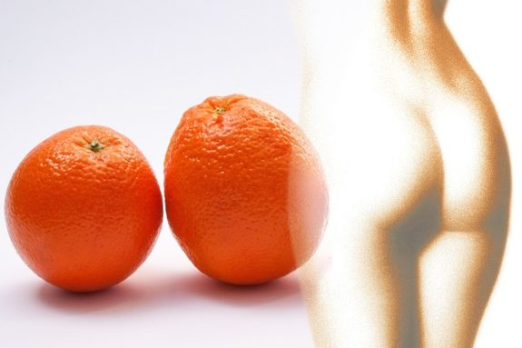 Cellulite Orangenhaut Faszientherapie